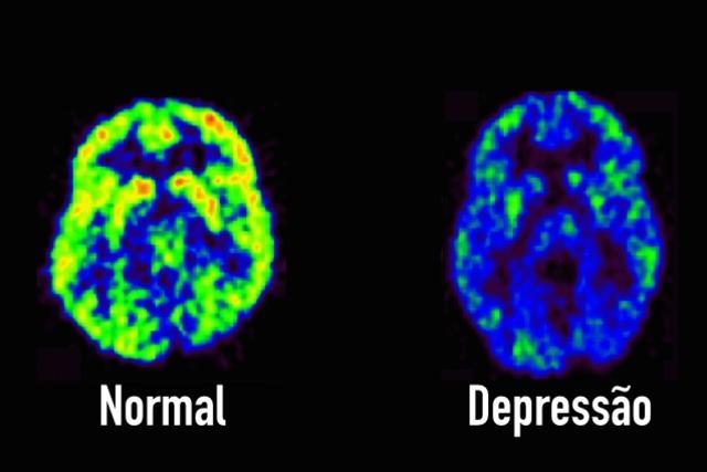 Conheça 7 sinais que podem indicar DEPRESSÃO