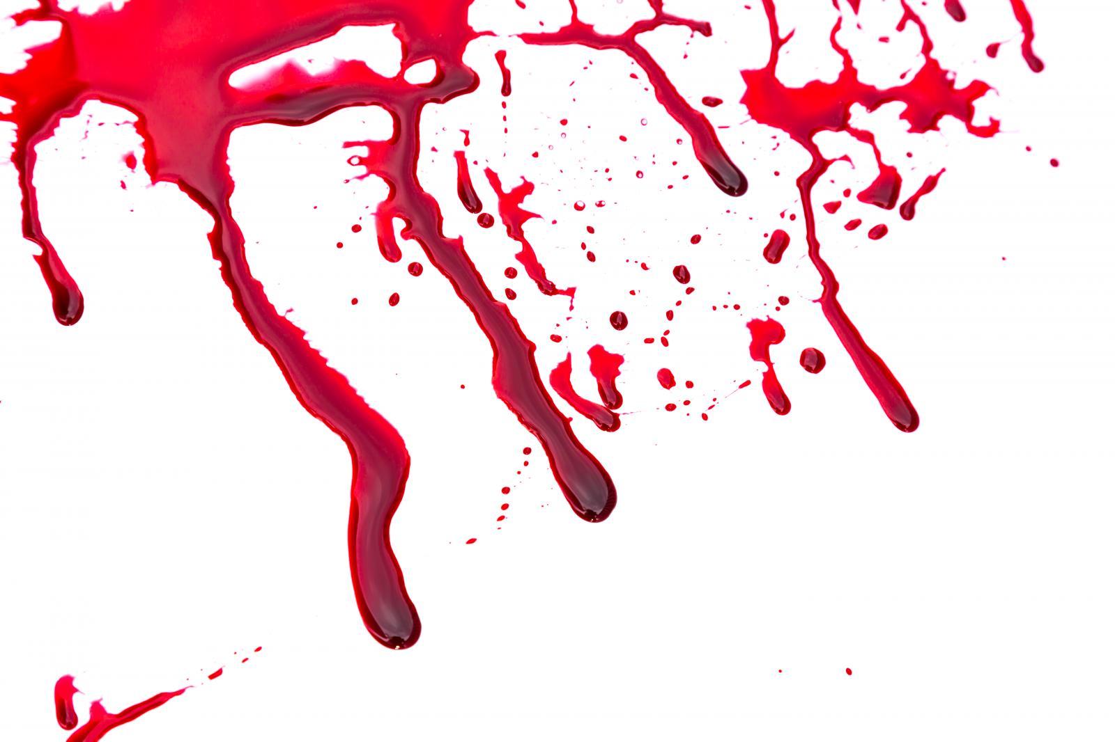 Acidentes de trabalho matam mais do que guerras